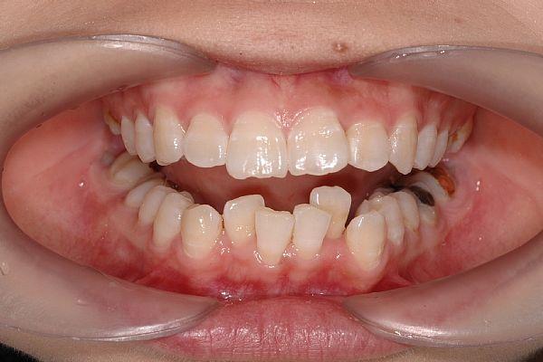 çapraşık diş ile ilgili görsel sonucu